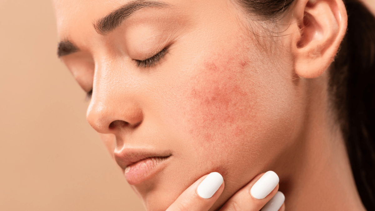 5 Amazing Ways to Get Rid of Acne Scars Before Your Wedding