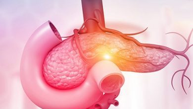Photo of Pancreatic Cancer Causes, Prognosis And Treatment