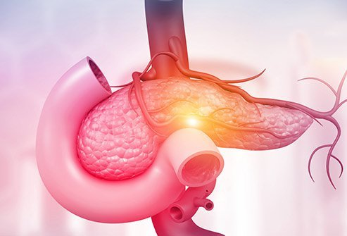Pancreatic Cancer Causes, Prognosis And Treatment