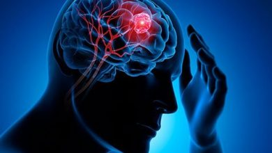 Photo of What Is Brain Tumor, Causes And Symptoms ?