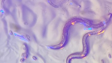 Photo of How Long Can Roundworm Eggs Live in Your Carpet