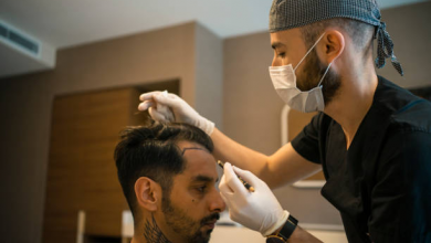 Photo of How Much Does It Cost to Get Hair Transplant in India?