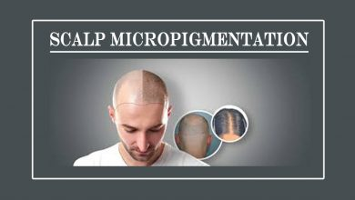 Photo of How is Scalp Micropigmentation treatment Beneficial for hair loss?